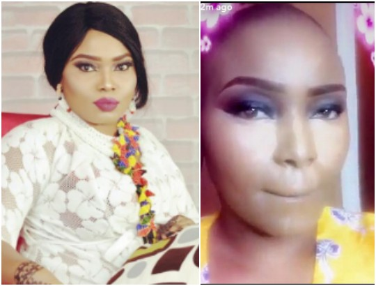 Image result for Halima Abubakar Goes Bald Following Drug Reactions After Her Surgery. (Photo)