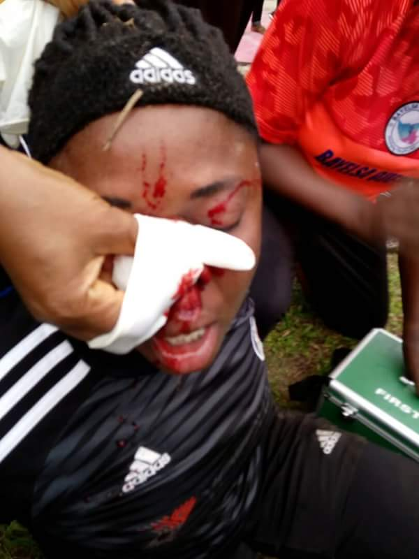 Bayelsa Queens Fans Attack Sunshine Queens FC Players, Brutalise Them (Pictures)