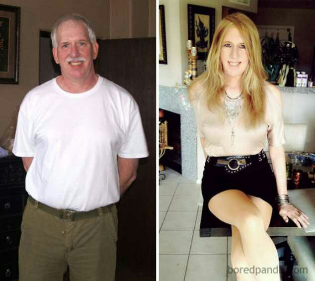 Gender reassignment female to male pictures-2770