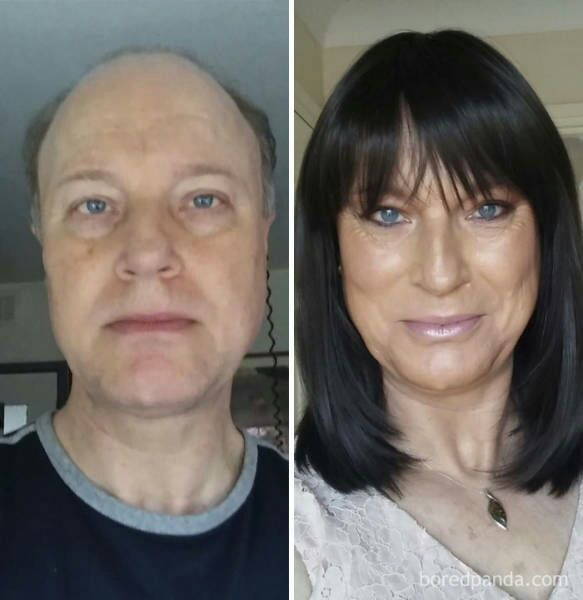 Transgenders before and after operation