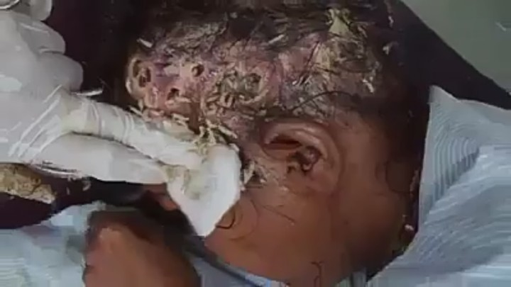 maggots coming out from a womans head viewers discretion