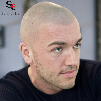 Best Scalp Micropigmentation At Cheap Hairline Tattoo Cost In NC ...