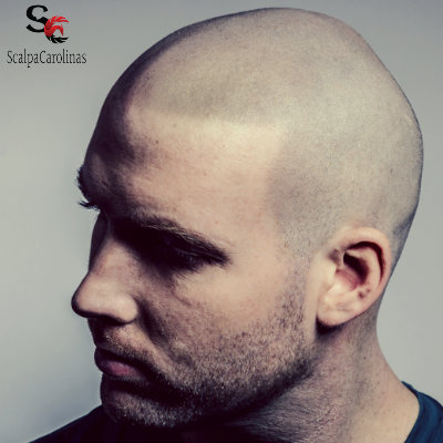 Best Scalp Micropigmentation From Scalpacarolinas At Low Hairline