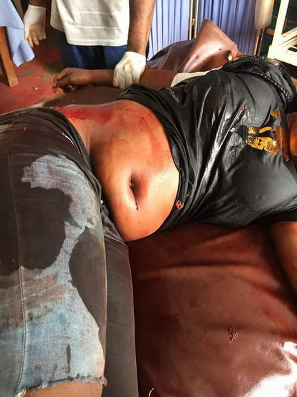 Police Shoot 18-Year-Old Girl & Her Friend In Delta Because Of N1000 (Graphic)