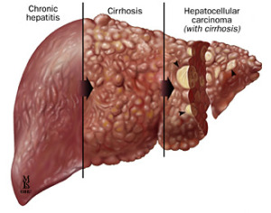 The Cure For Hepatitis B And C That You Didn't Know   {with Pic