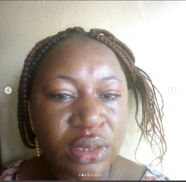6549158_screenshot2_jpeg1190646d7dad52a810e9b533aff0f04e Domestic Violence: Woman Cries Out After Husband Brutalizes Her (photos)