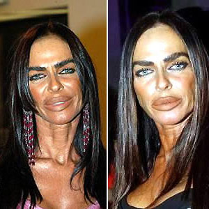 9 Worst Plastic Surgery Disaster In The World Health