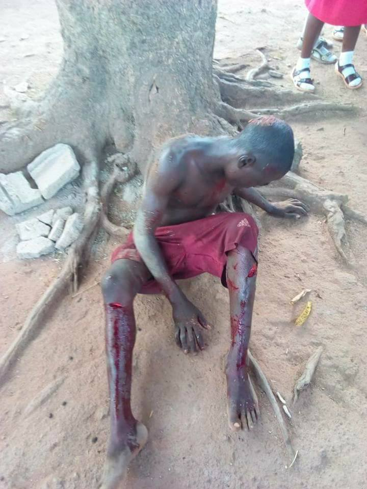 PHOTOS: Father Leaves His Son Bloodied After Beating Him With Cutlass In Kaduna