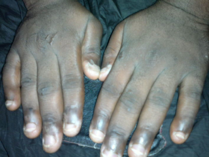 How Can I Stop Biting My Nails - Health - Nigeria