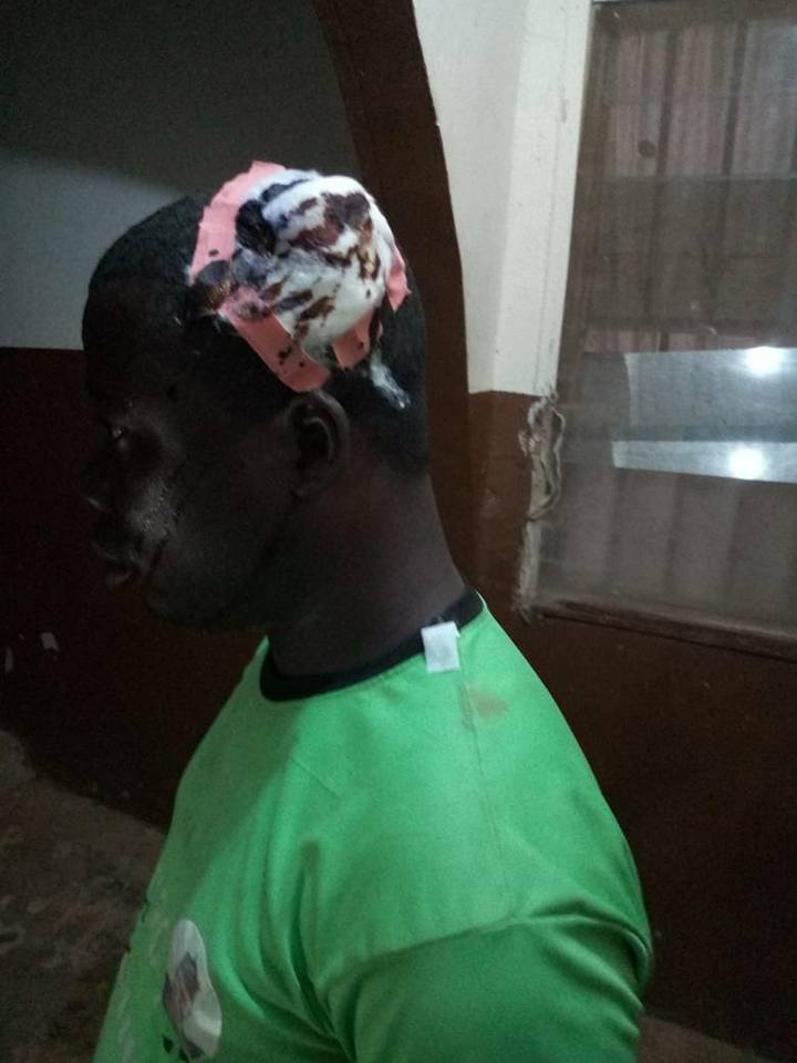 Unknown Thugs Attack PDP Stalwarts In Ekiti State, Beat Them Mercilessly