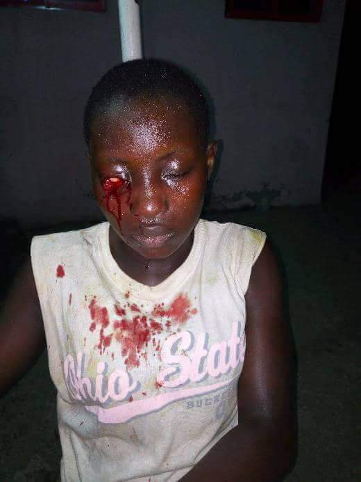 Graphic Photos: Bayelsa Female Cultists Attack 16-Year-Old Girl For Refusing To Join Them