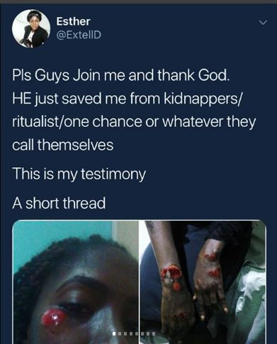 Lady Bravely Escaped From Suspected 'One Chance' Kidnappers In Rivers (Graphic)