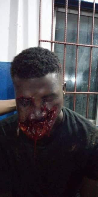 Aiye And Eiye Delta Gang War: Man's Mouth Blown With Gun By Cultists (Photo)