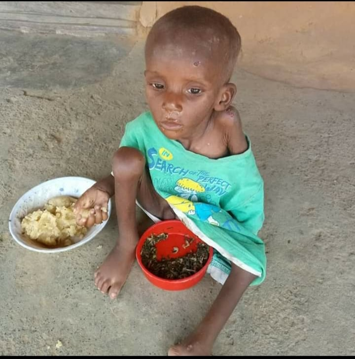 Ubong Promise: Abandoned Over 'Witchcraft' (Transformation Photos)