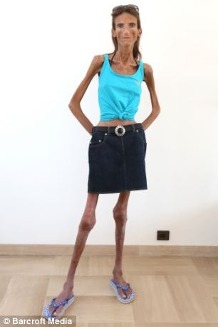 photos sad story of the worlds thinnest woman