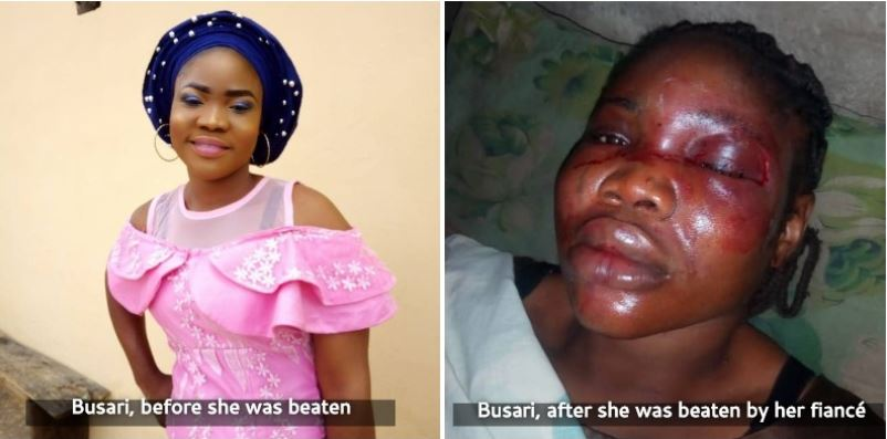Busari Omolara: Lady Cancels Her Wedding As Fiancé Beats Her