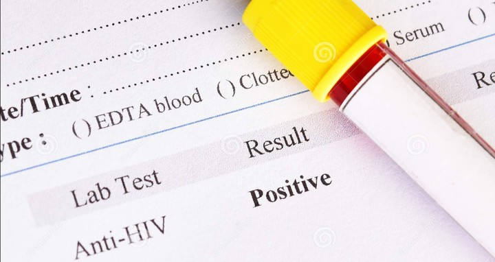 Some Labs Are Giving False HIV Results In Lagos - Doctor Olufunmilayo