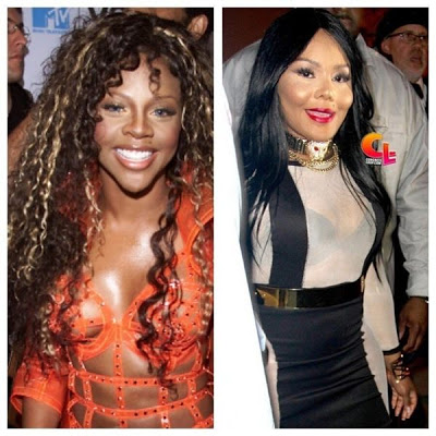Power Of Plastic Surgery See Lil Kim Before Amp After